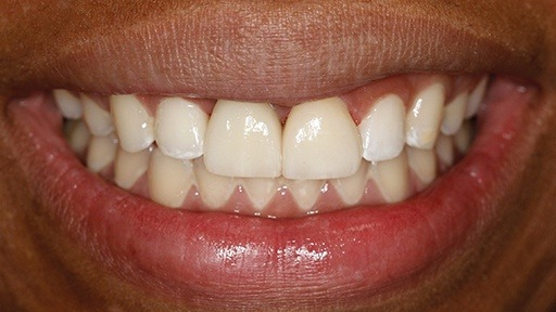 Closeup of smile after dental implant supported tooth replacement