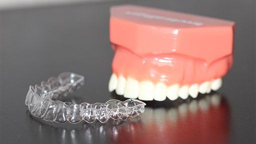 Model smile and Invisalign alignment tray