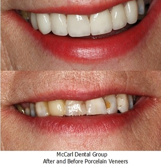 Before and after image of real patient with porcelain veneers