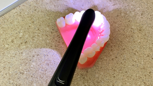 Intraoral camera capturing smile photo
